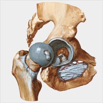 http://www.protesianca.com/wp-content/uploads/2015/11/anca_grigio.jpg